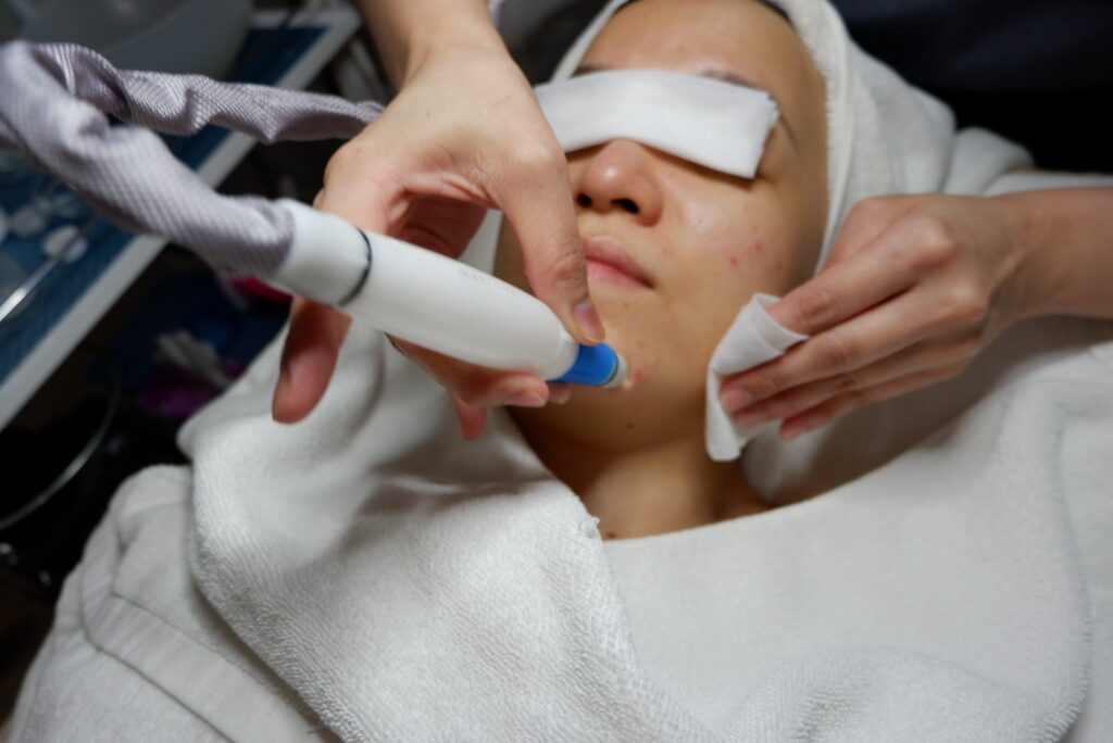 Indulgence Beauty Singapore Facial Extraction